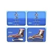 Plantare ortopedico walk solette fit solette con 3 rialzi anatomici alzatacco di diverso spessore - Unisex